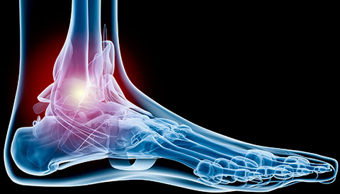 Orthopedic Conditions of the Ankle, Dr Vasilios Pandis, Orthopedic