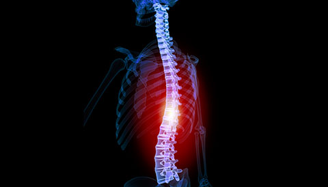 Orthopedic Conditions of the Spine, Dr Vasilios Pandis, Orthopedic