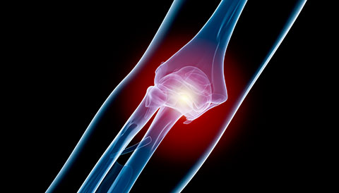 Orthopedic Conditions of the Elbow, Dr Vasilios Pandis, Orthopedic