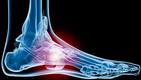 Orthopedic Conditions of the Foot, Dr Vasilios Pandis, Orthopedic