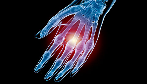 Orthopedic Conditions of the Hand, Dr Vasilios Pandis, Orthopedic