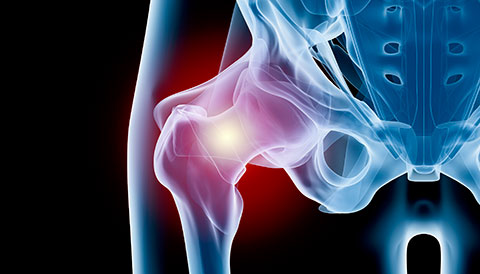 Orthopedic Conditions of the Hip, Dr Vasilios Pandis, Orthopedic