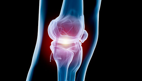 Orthopedic Conditions of the Knee, Dr Vasilios Pandis, Orthopedic
