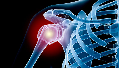 Orthopedic Conditions of the Shoulder, Dr Vasilios Pandis, Orthopedic