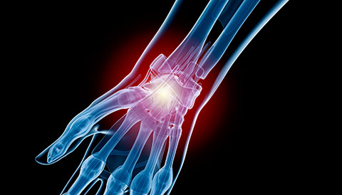 Orthopedic Conditions of the Wrist, Dr Vasilios Pandis, Orthopedic
